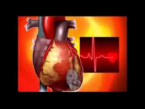 Как работает сердце человека! Первые признаки инфаркта миокарда...