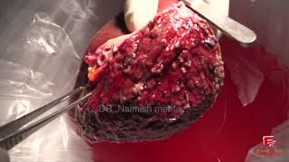 Liver Transplant by Dr. Naimish Mehta