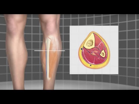 Runner's Compartment Syndrome - Mayo Clinic