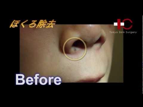 痛みなし!5分で簡単にホクロが取れる?/東京皮膚科・形成外科