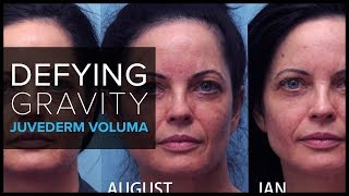 Defying Gravity with JUVÉDERM Voluma® for Cheek Augmentation
