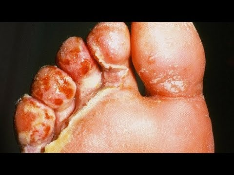 Athlete's foot Pictures HD - Signs, Symptoms, Images, Photos and Pictures of Athletes foot Fungus