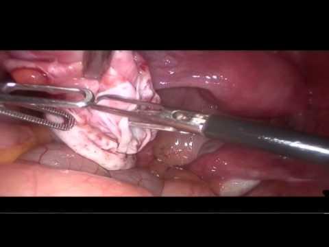 comment soigner kyste ovarien
