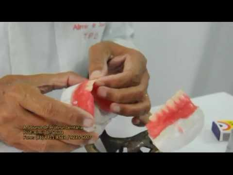 Prótese dentária montagem - Prof. Almir de Souza
