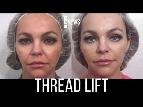Before and After Sugar Thread Lift - Nurse Jamie on E News!