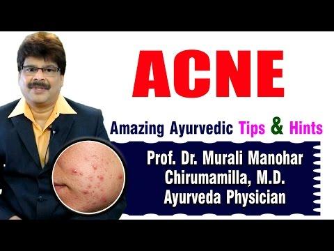 Acne | Ayurvedic Remedies | Prof. Dr. Murali Manohar Chirumamilla, M.D. (Ayurveda)