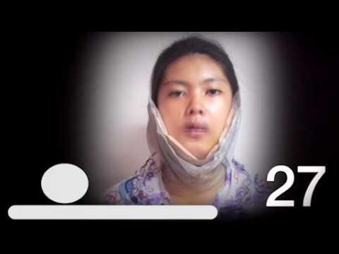 Thái Lan: Cô gái xấu xí hóa mỹ nhân nhờ phẫu thuật thẫm mỹ
