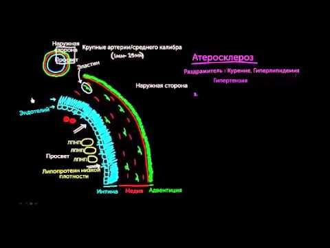 Атеросклероз, часть 1