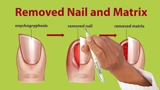 http://www.remedyland.com/2013/11/onychogryphosis-rams-horn-nails-treatment.htmlOnychogryphosis or Ram's Horn Nails TreatmentCopyright © 2012-2013 Remedy LandAll Rights Reserved.