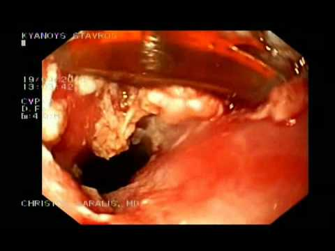 Inlet Patch In Esophagus - Halo 90 Therapy