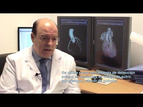 Tomografía computarizada de baja radiación