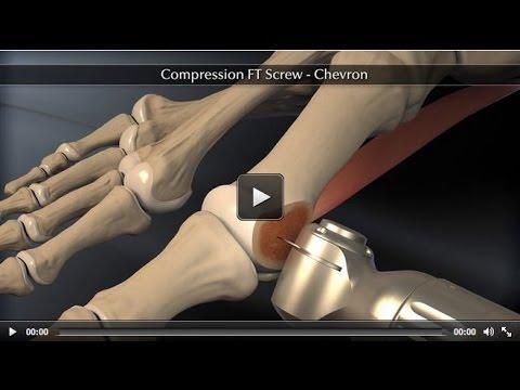 Headless Compression Screw – Chevron Animation