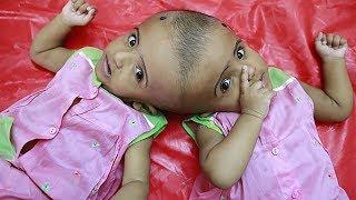 Сросшиеся головами близнецы прилетели в Венгрию на операцию