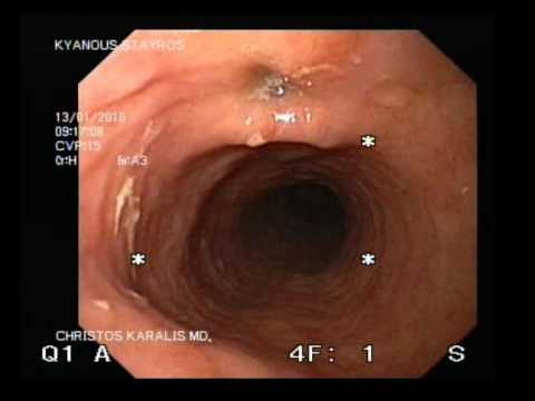 Diverticulum Of The Esophagus