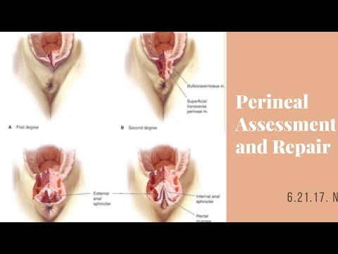 Assessing and Repairing Perineal Lacerations