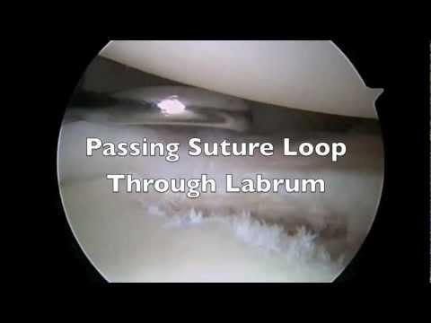 Anterior and Posterior Labral Repair - Jeffrey H. Berg MD (видео)