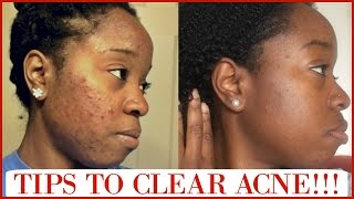 Hey everyone, in this video I will share useful tips that will help with clearing acne and dark spots. I also talk about Retin-A and Hydroquinone. Be sure to share this video with anyone that may find it helpful! :)P R O D U C T S   M E N T I O N E D:Nadinolahttp://amzn.to/1T93qvvSea Salthttp://amzn.to/27hlPh3Neutrogena Sunscreen SPF 70http://amzn.to/1QXoAbqRetin-A Micro Gel .08%Prescribed by a DermatologistHydroquinone 4%Prescribed by a DermatologistSee how I use Sea Salt for Acne & Dark Spots!http://bit.ly/1Ot9ISrCheck out My Acne Journey:http://bit.ly/1SSWbFSCheck out My Skin Care Routine:http://bit.ly/23G6e6jCheck out my new VLOG Channel!!! http://bit.ly/1VMWHtqK E E P U P W I T H M E Instagram: @aprilbeee_http://bit.ly/1Rv8bBwSnapchat: @aprilbeee1Facebook: April Beeehttp://on.fb.me/1MqdCeDTwitter: @aprilbeee_http://bit.ly/1HqTEPEF O R   B U S I N E S S   I N Q U I R I E S Email: april.beee1@gmail.comM U S I C:http://bit.ly/1WbOv7cT H A N K S   F O R   W A T C H I N G !!!
