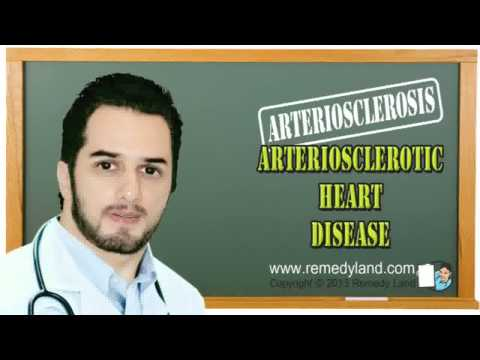 Arteriosclerotic heart disease or arteriosclerosis – Risk factors, Brain localization and Treatment