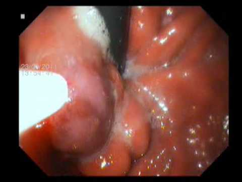 Endoscopic Injection of Nectacryl Glue