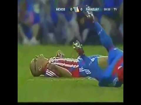 Peristiwa Kecelakaan Buruk Pemain Sepak Bola Dunia  - Top 10 Horrorble  Injury History