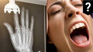 JARI WANITA TERSANGKUT DI BLENDER TANGAN Ini adalah foto X-ray, menampilkan seorang wanita yang jarinya teriris sebelum tersangkut dalam blender tangan. Gambar ini diposting ke Figure 1, aplikasi dan situs web di mana dokter dapat berbagi gambar medis. Menurut perawat yang mengupload, wanita berusia 34 tahun sedang membuat falafel ketika buncis tersangkut dalam salah satu baling-baling.  Wanita itu kemudian berusaha untuk mengeluarkan buncis. Satu-satunya masalah adalah ia tidak mematikan blender, jadi setelah buncis dikeluarkan, pisau mulai berputar.  Jarinya kemudian tersangkut setelah pisau tertanam dalam dagingnya. Untungnya bagi wanita, satu-satunya cedera yang ia terima adalah kuku yang rusak.  Jari yang hampir terpotong jelas tidak mengganggu psikologisnya, karena perawat melaporkan wanita meminta untuk membawa blender kembali ke rumahnya.-------------------------------------------------------------TomoNews adalah sumber berita nyata terbaik. Kami meliputi cerita paling lucu, paling gila dan paling banyak dibicarakan di internet. Cara penyampaian kami apa adanya dan tidak mengenal batas tertentu. Jika Anda tertawa, maka kami juga sedang tertawa. Jika Anda marah, kami pun sedang marah. Kami menyampaikan berita apa adanya. Dan karena kami juga dapat menganimasikan cerita, TomoNews memberikan Anda berita yang belum pernah Anda lihat sebelumnya.Kunjungi website official untuk berita terhangat, dan tanpa sensor: http://us.tomonews.comFollow juga halaman Facebook kami: https://www.facebook.com/tomonewsidSilahkan cek aplikasi Android kami: http://bit.ly/1rddhCjSilahkan cek aplikasi iOS kami: http://bit.ly/1gO3z1f