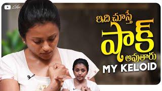 Idhi Chusthe Shock Avutharu – My Keloid || Konda Polam Pre-Release