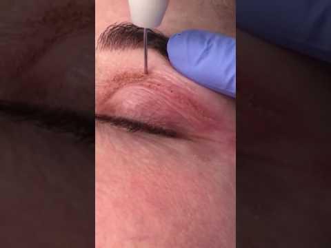 PLEXR Non Surgical Blepharoplasty