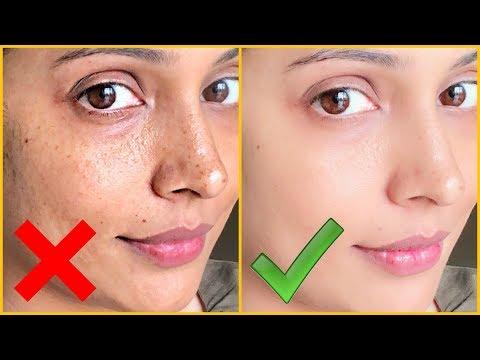 Right Vs Wrong || Hyper-Pigmentation, Dark Spots, Acne Scars || Shruti Arjun Anand