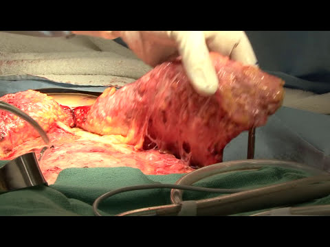 LIVE SURGERY | Brazilian Butt Lift (BBL) | Tummy Tuck in San Francisco   Part 3 OF 5