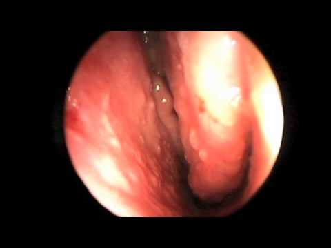 Endoscopy of Nasal Cavity and Sinuses