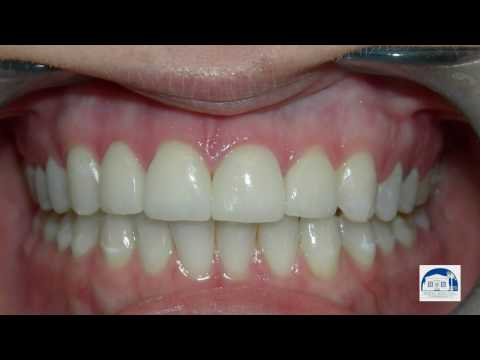 Porcelain Veneers Los Angeles