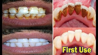 Video In just 2 Minutes - Turn Yellow Teeth to Pearl White With This Kitchen Ingredients amazing Teeth MP3, 3GP, MP4, WEBM, AVI, FLV Februari 2019