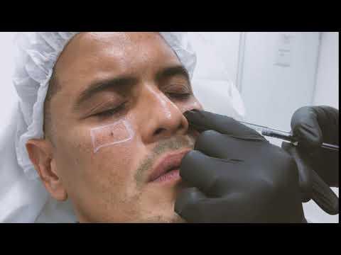 Ivan Diazgranados Fernandez  Dermatólogo, Medicina estética