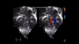 Single-stage repair of Taussig-Bing anomaly and interrupted aortic arch-type A