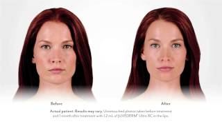 Juvederm for Lips- Clancy Story