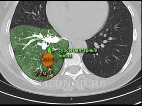 Торакоскопическое удаление опухоли из корня нижней доли правого легкого, интракорпоральный шов.