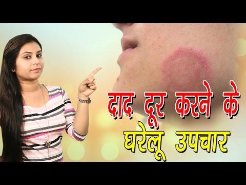 Video दाद दूर करने के घरेलू उपचार Home Remedies For Ringworm   Daad Ka Ilaj In Hindi - Vianet Health download in MP3, 3GP, MP4, WEBM, AVI, FLV January 2017