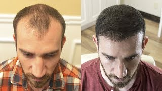 Video HAIR TRANSPLANT | Before & After | 1 Year Post Surgery MP3, 3GP, MP4, WEBM, AVI, FLV November 2018