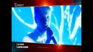 X Factor Albania - Promo - Finalja
