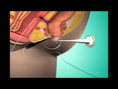 Fistula Treatment in Pune | Fistula Hospital in Pune | Dr. Ashwin Porwal - Fistula Surgeon Pune