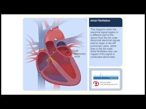 Atrial Fibrillation Animation Video