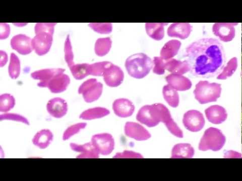Sickle Cell Anemia — not evidence for evolution
