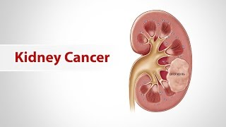 Kidney Cancer is a rare disease in India although in this large population every year we see over 10,0000  kidney cancer affected patients. Dr. Bharat Bhosale explains the signs and symptoms of this rare disease called Kidney cancer.