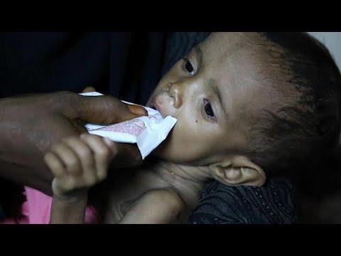 Υεμένη: Παιδιά στο έλεος της χόλερας