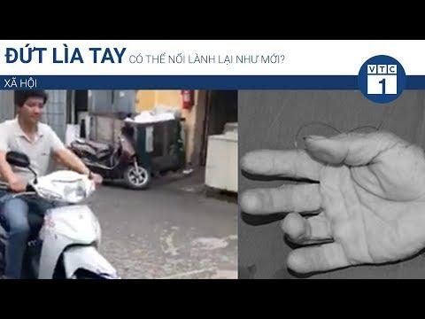 Đứt lìa tay có thể nối lành lại như mới? | VTC1 - Thời lượng: 117 giây.