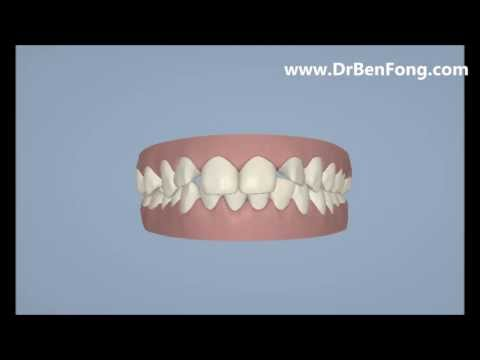 Invisalign Results for Damithri S.| Before & After | www.invisalignresults.ca