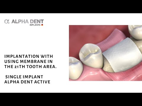 Implantation with using membrane in the 21th tooth area. Single implant Alpha Dent Active