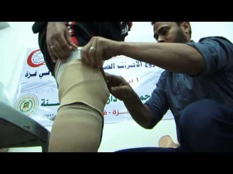 فيديو/ مشروع تركيب الأطراف الصناعية لجرحى غزة