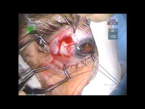 Express shunt glaucoma surgery