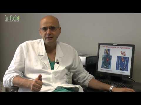 le 6 regole per prevenire le malattie cardiovascolari!